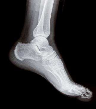 x-ray of an ankle sprain
