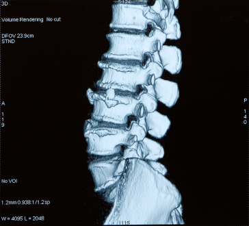 Chiropractic Burlington Ontario and Degenerative Disc Disease