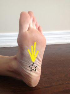Plantar Fascia and Foot Pain