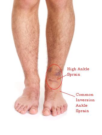 male with sprained ankle isolated on white background