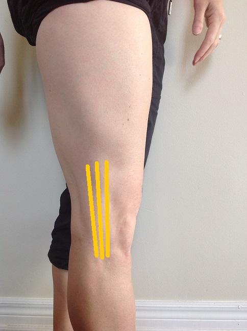 knee of leg