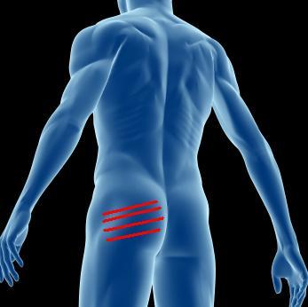 strips on man's rearend