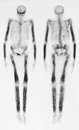 skeleton bone scan