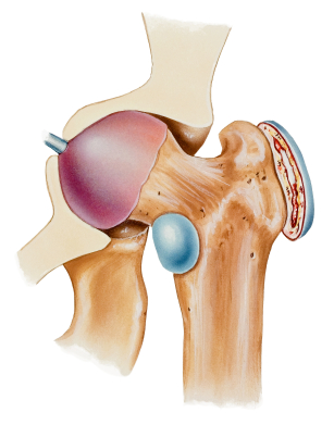 graphic of Bursitis of the hip