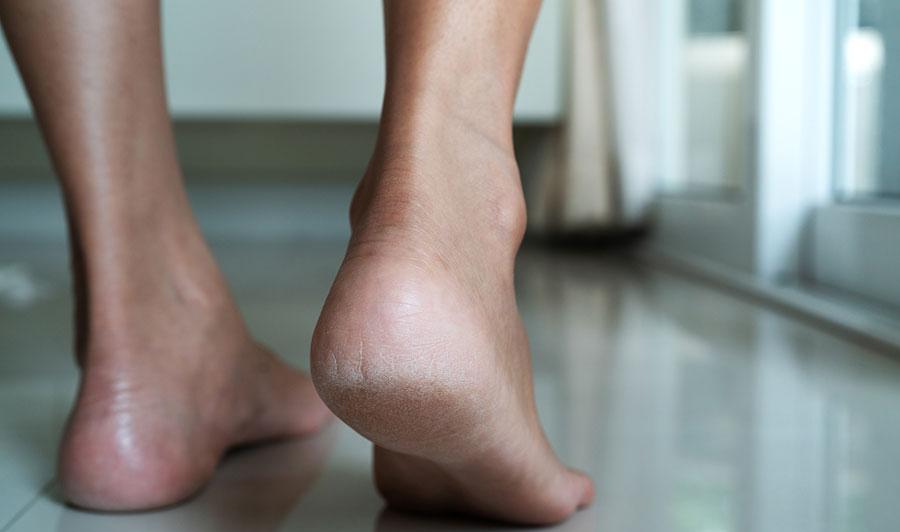 barefoot heel on floor