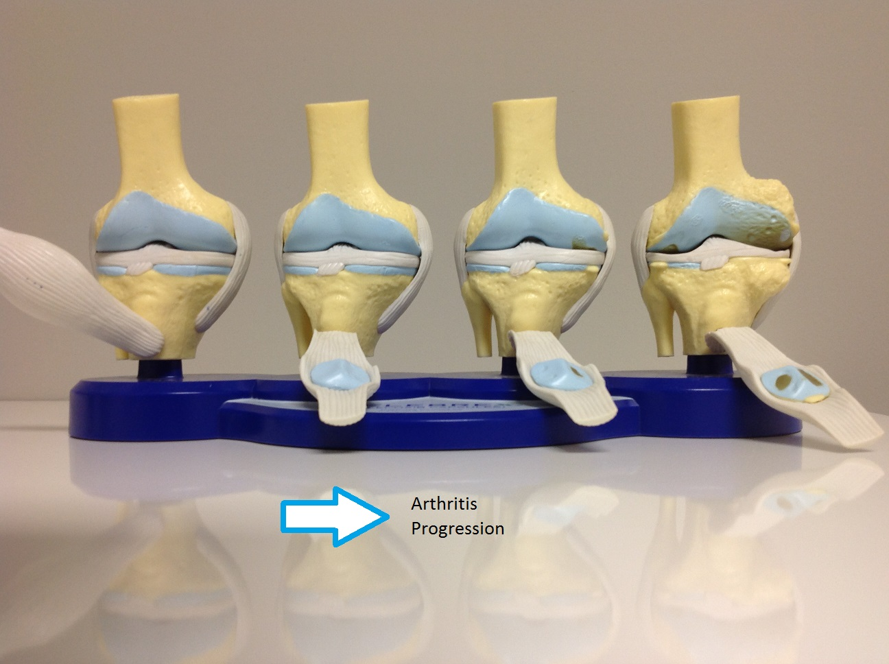 model of knee arthritis