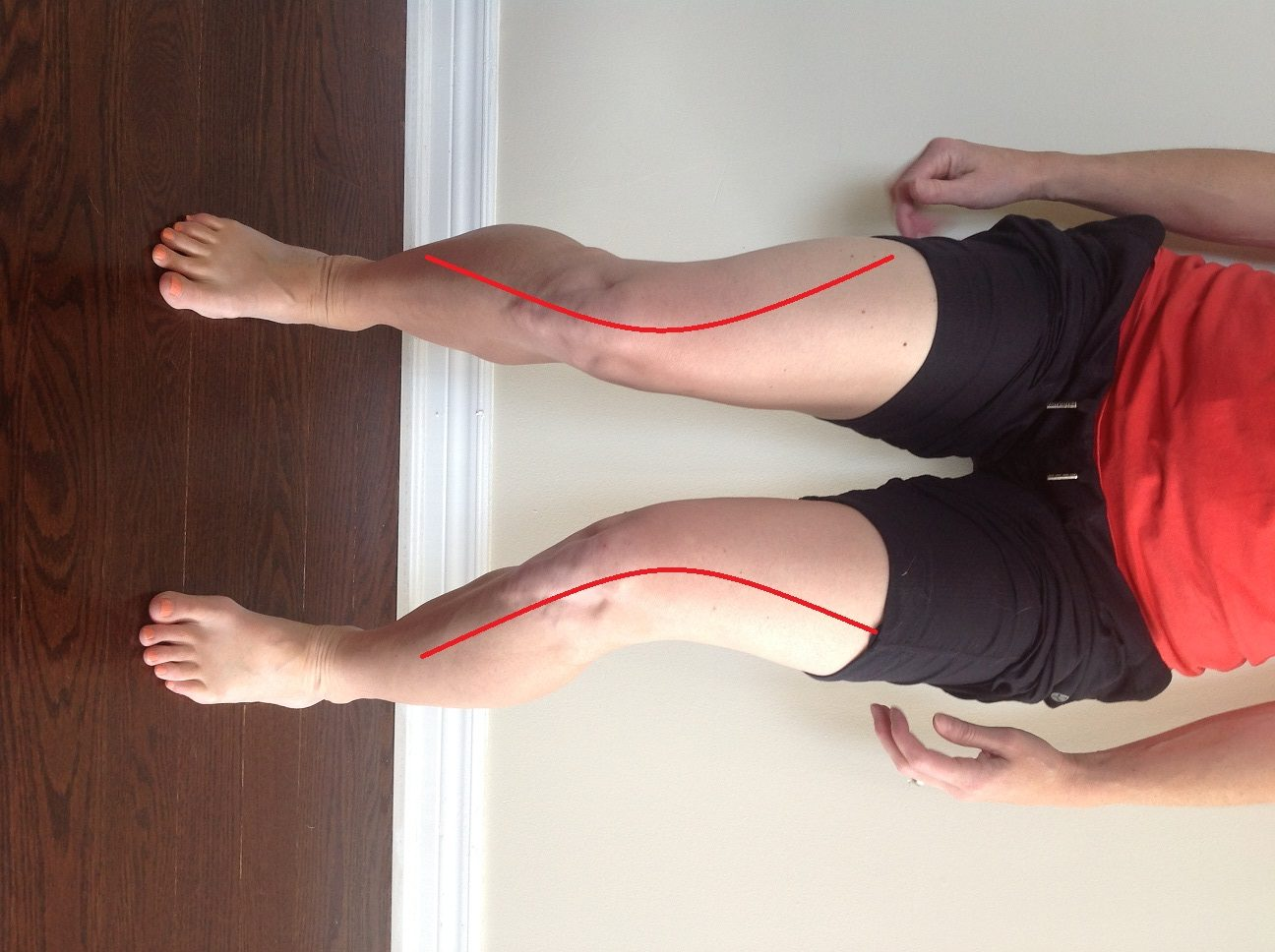 person demonstrating knee pain