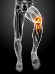 Runner skeleton with knee pain