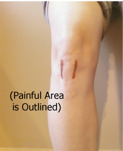 knee with pain drawings