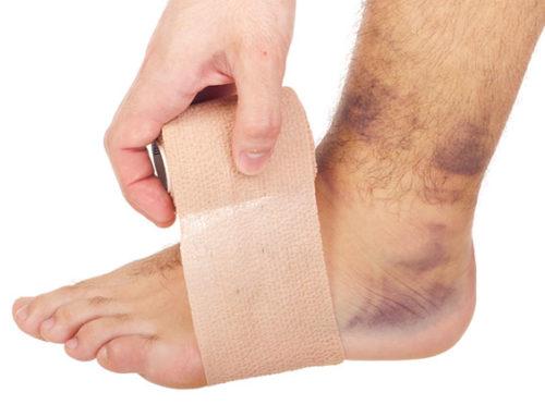 Treatment for Sprains