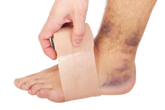applying a tensor bandage to a sprained ankle